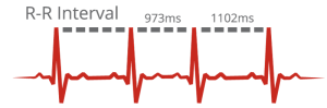 Heart Rate Variability - RR Intervals